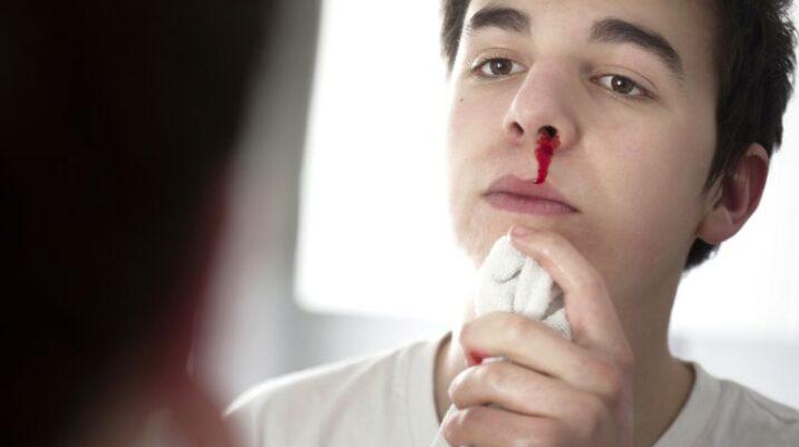 Çfarë e shkakton gjakrrjedhjen e hundëve gjatë dimrit?