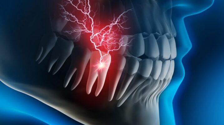 Arsyet përse dhëmbi dhemb më shumë natën