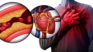 Si ta mbroni zemrën nga kolesteroli