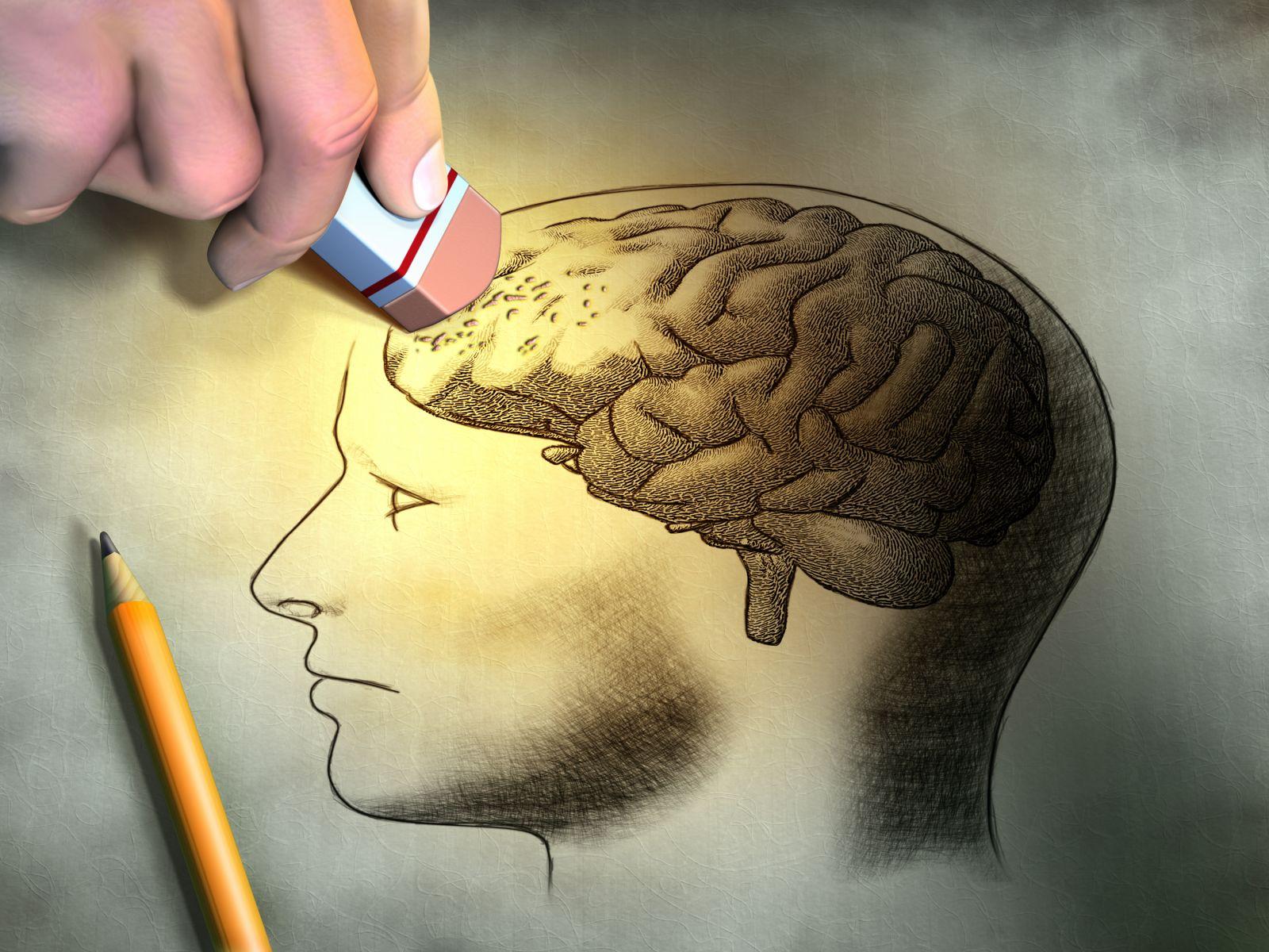 Plakja e trurit – disa mënyra si të parandaloni rrezikun